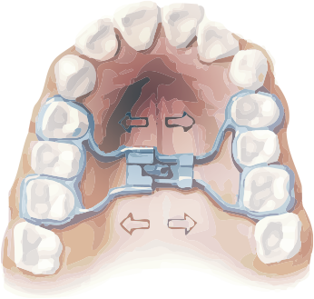 Orthodontics Tres Torres Barcelona expanders for children