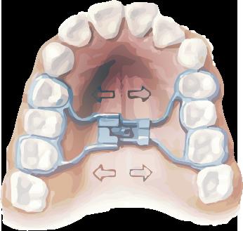 Orthodontics Tres Torres Barcelona expanders for children