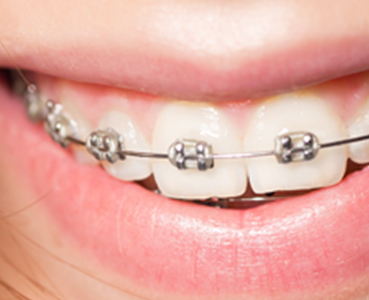 Orthodontics Tres Torres visible orthodontics with brackets