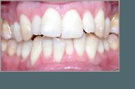 Ortodoncia Tres Torres Barcelona resultados caso real