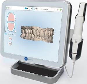 Orthodontics Tres Torres Barcelona i-tero 3D scanner