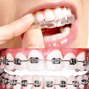 La ortodoncia mixta consiste en combinar brackets y alineadores, o lo que es lo mismo, brackets e Invisalign