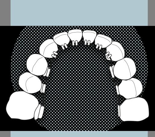 Il·lustració de brackets linguals