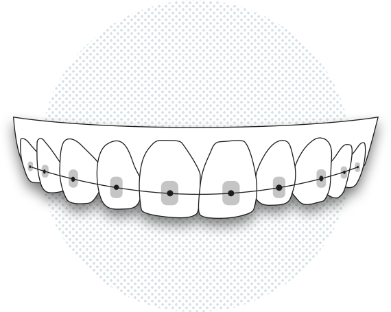Illustration of conventional brackets