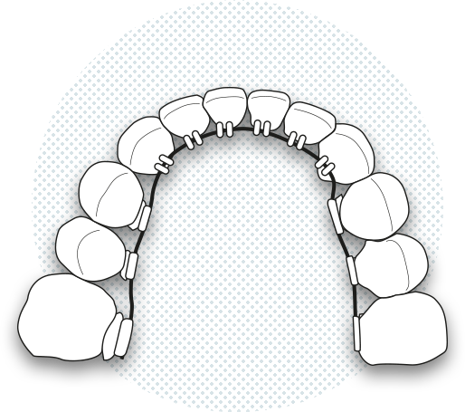 Illustration of lingual brackets