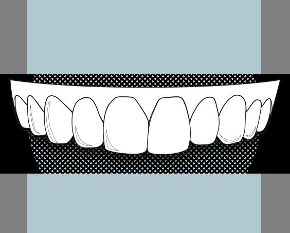 Il·lustració d'un aligner
