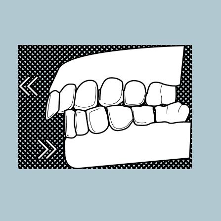 Il·lustració de dents frontals superiors que sobresurten per damunt dels inferiors