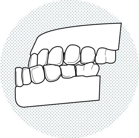 Il·lustració de dents inferiors més avançats que els superiors