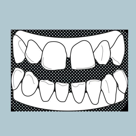 Il·lustració d'una dentadura amb les dents separades