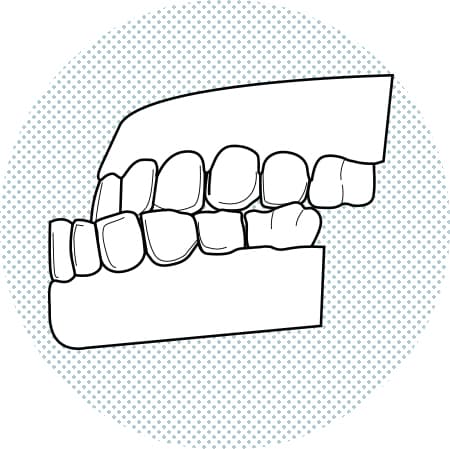 Illustration of lower teeth more advanced than upper
