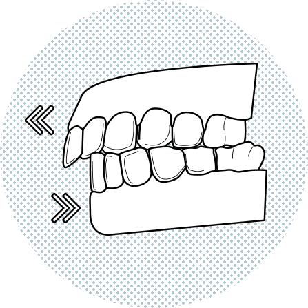 Illustration of upper front teeth protruding above the lower
