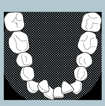 Illustration of crowded teeth