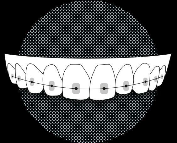 Ortodoncia con brackets Barcelona