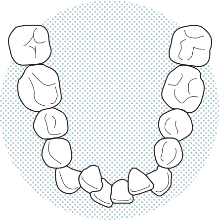 Apiñados dental Barcelona