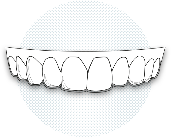 Illustration of an aligner