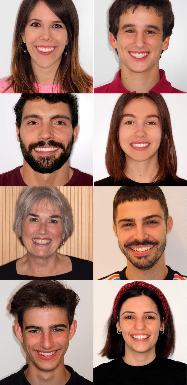 Casos clínicos de ortodoncia Barcelona