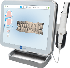 Lingual orthodontic treatment starts by taking very accurate digital impressions of the teeth in 3D