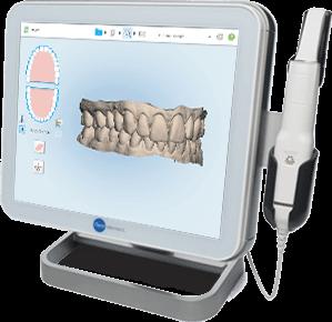 El tractament d'ortodòncia lingual s'inicia prenent digitalment impressions molt precises de les dents en 3D