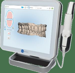 El tratamiento de ortodoncia lingual se inicia tomando digitalmente impresiones muy precisas de los dientes en 3D